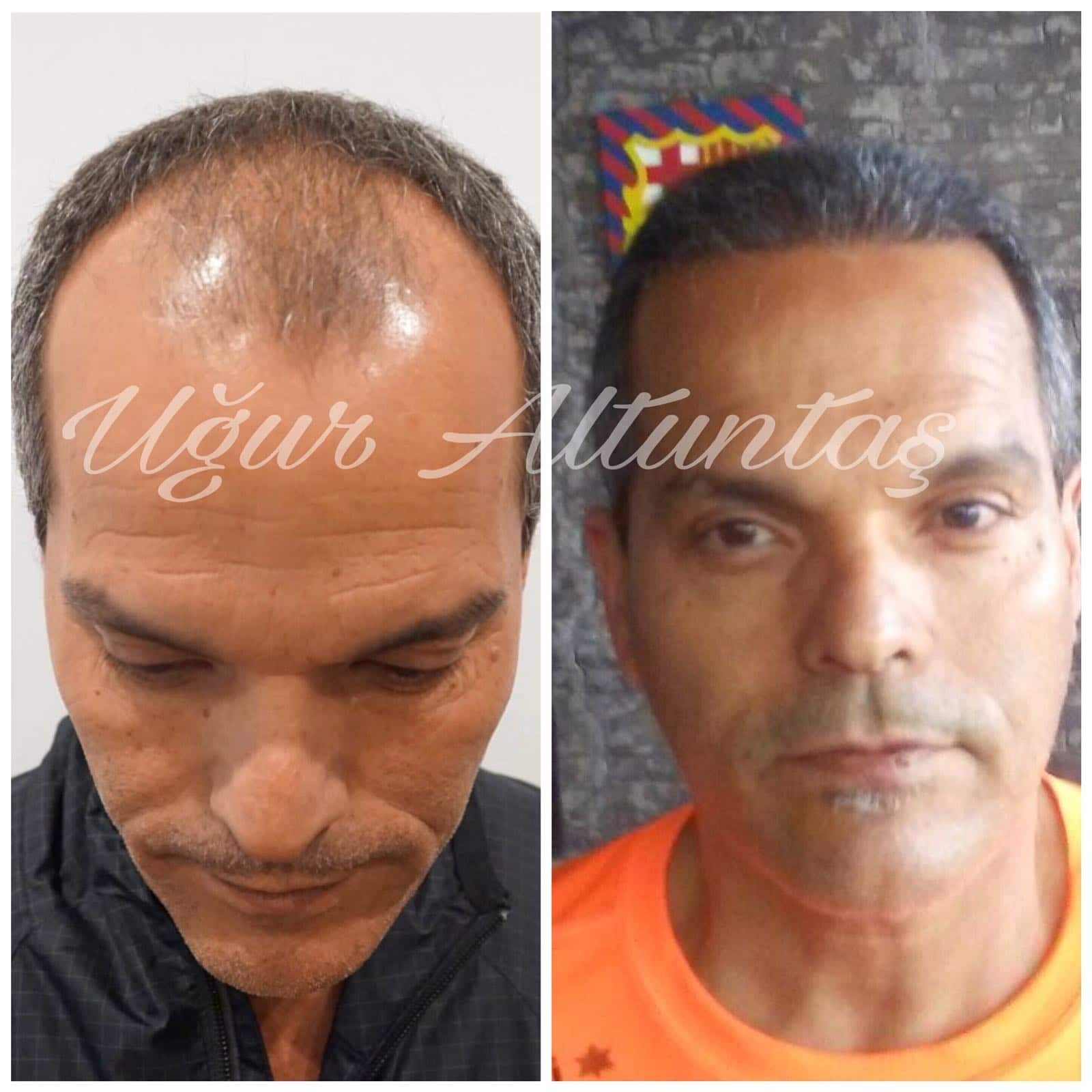 Global-health-fue-before-after-2