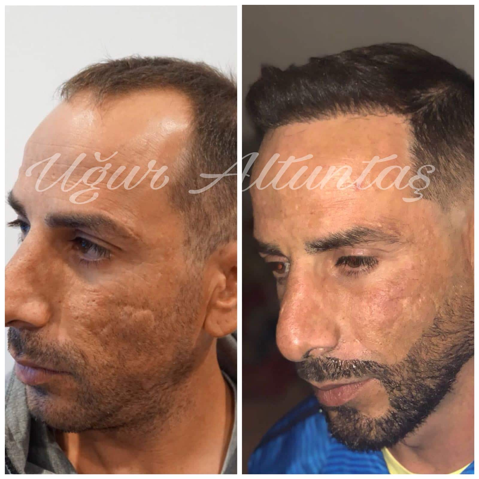 Global-health-fue-before-after-3