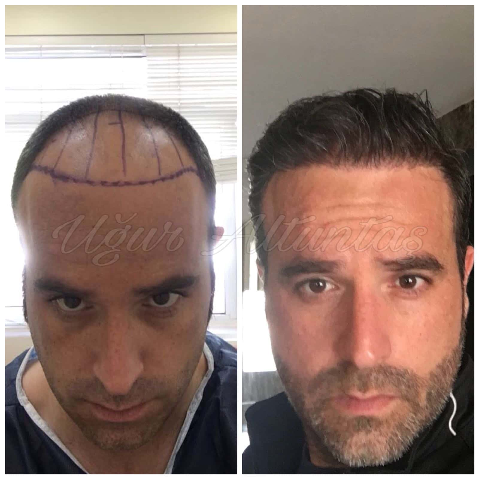 Global-health-fue-before-after-5
