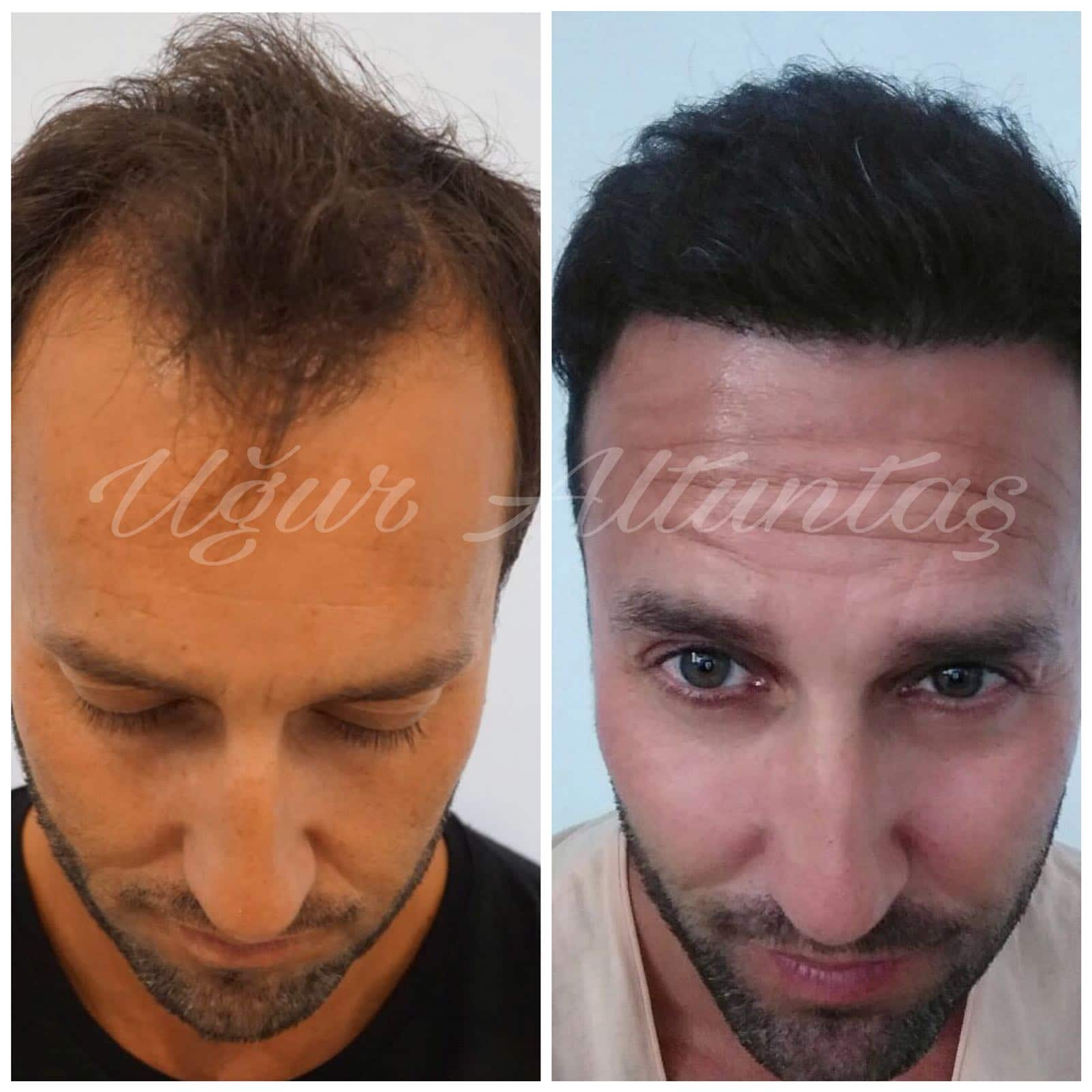 Global-health-fue-before-after-6