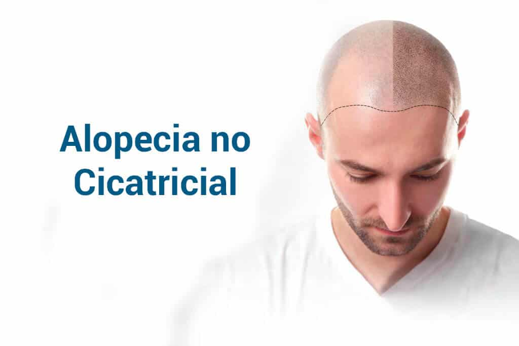 Alopecia no cicatricial