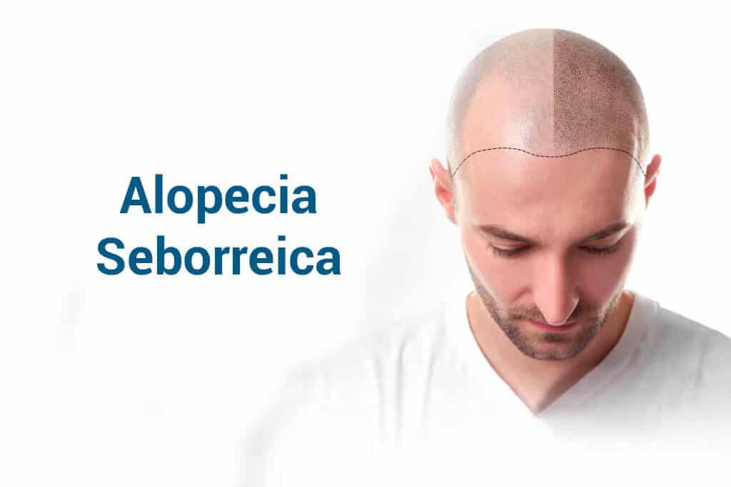 Alopecia suborreica