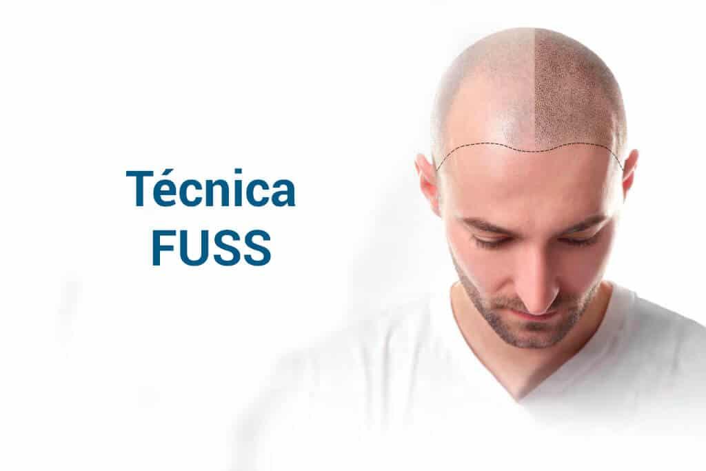 Técnica FUSS