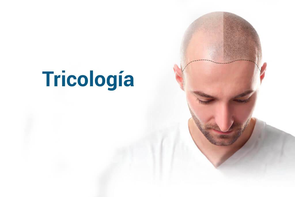 Tricología