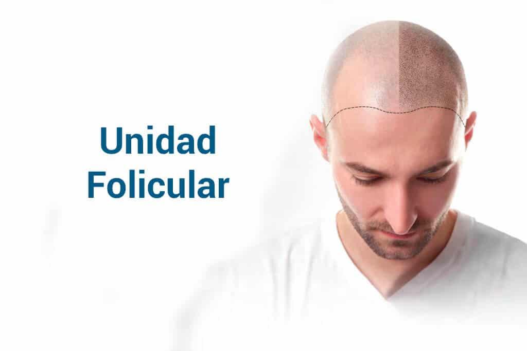 Unidad folicular